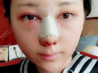 中国那个医生做鼻子好 我做的鼻综合术后20天基本上都消肿了算恢复快的吗