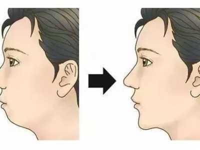 整牙会改变脸型吗 通过戴牙套矫正后可以改变脸型