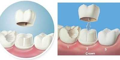 美容冠矫正牙齿的危害 美容冠会不会伤害牙齿