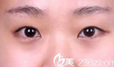温岭美诺整形 有没疤痕